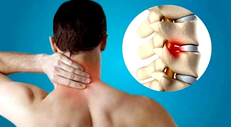 Cervical Pain Homeopathic Medicine